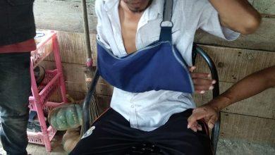 Photo of Ridwan, Juru Parkir Di Aceh Timur Ingin Tangannya Diamputasi